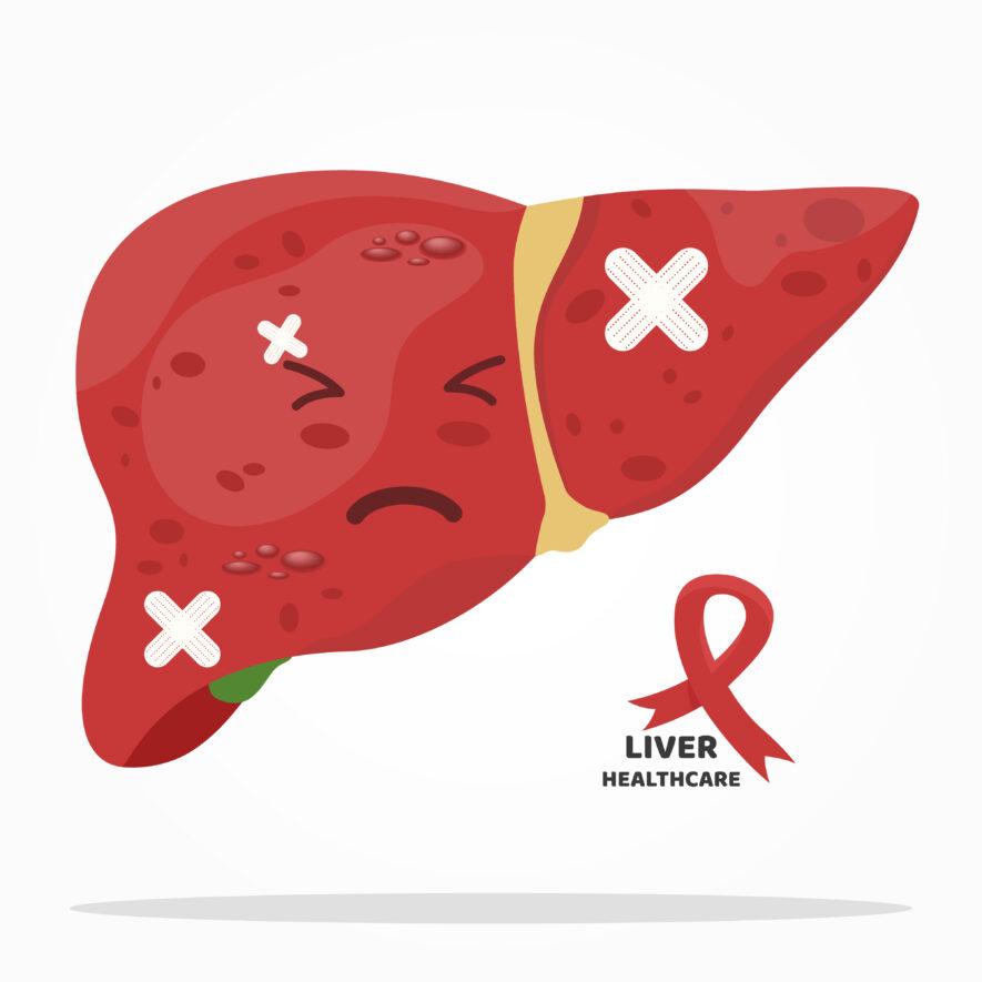 肝臓が不調